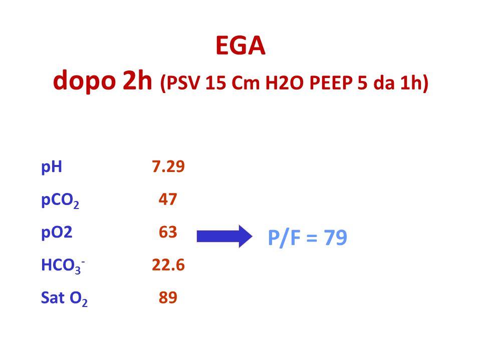 EGA dopo 2h (PSV 15 Cm H2O PEEP 5 da 1h) 89Sat O 2 22.6HCO 3 - 63pO2 47pCO 2 7.29pH P/F = 79