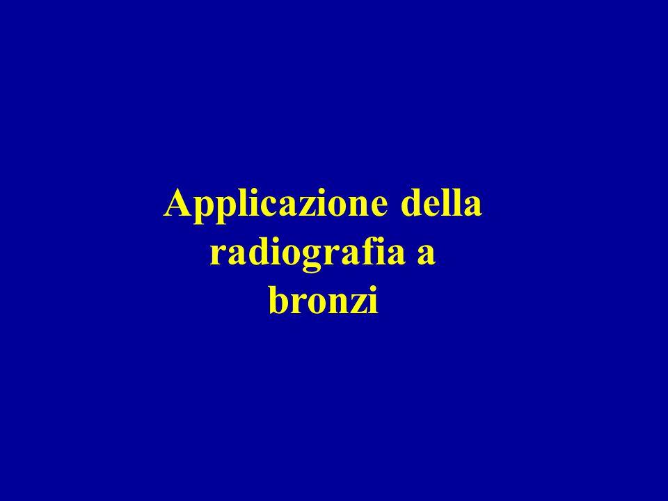 Applicazione della radiografia a bronzi