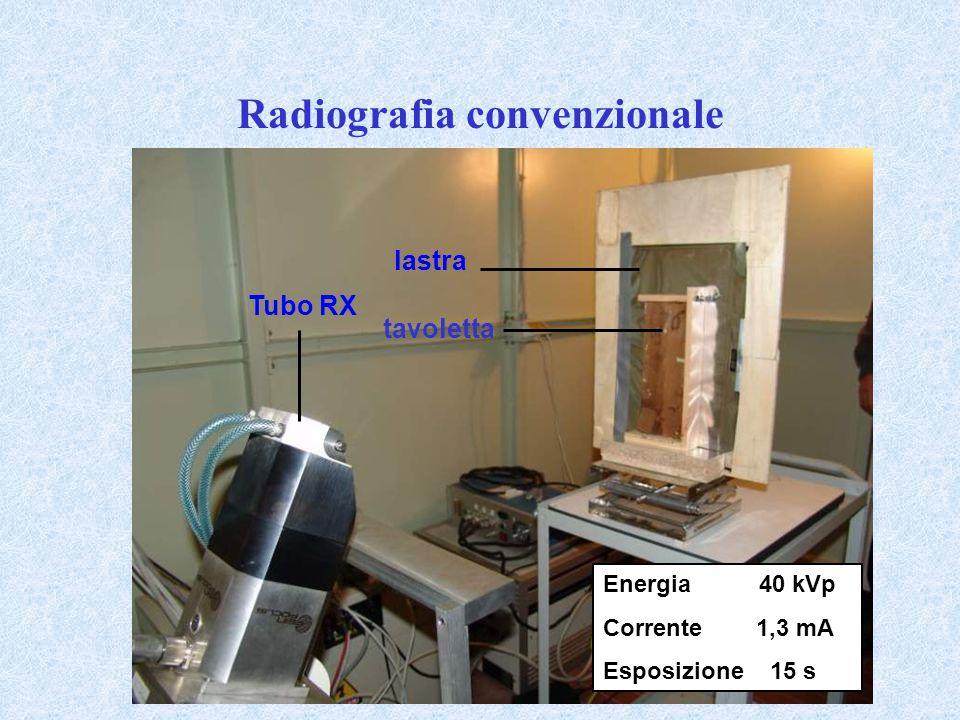Radiografia convenzionale Energia 40 kVp Corrente 1,3 mA Esposizione 15 s Tubo RX lastra tavoletta