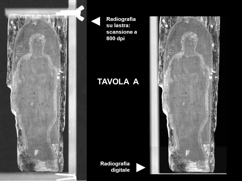 Radiografia su lastra: scansione a 800 dpi Radiografia digitale TAVOLA A