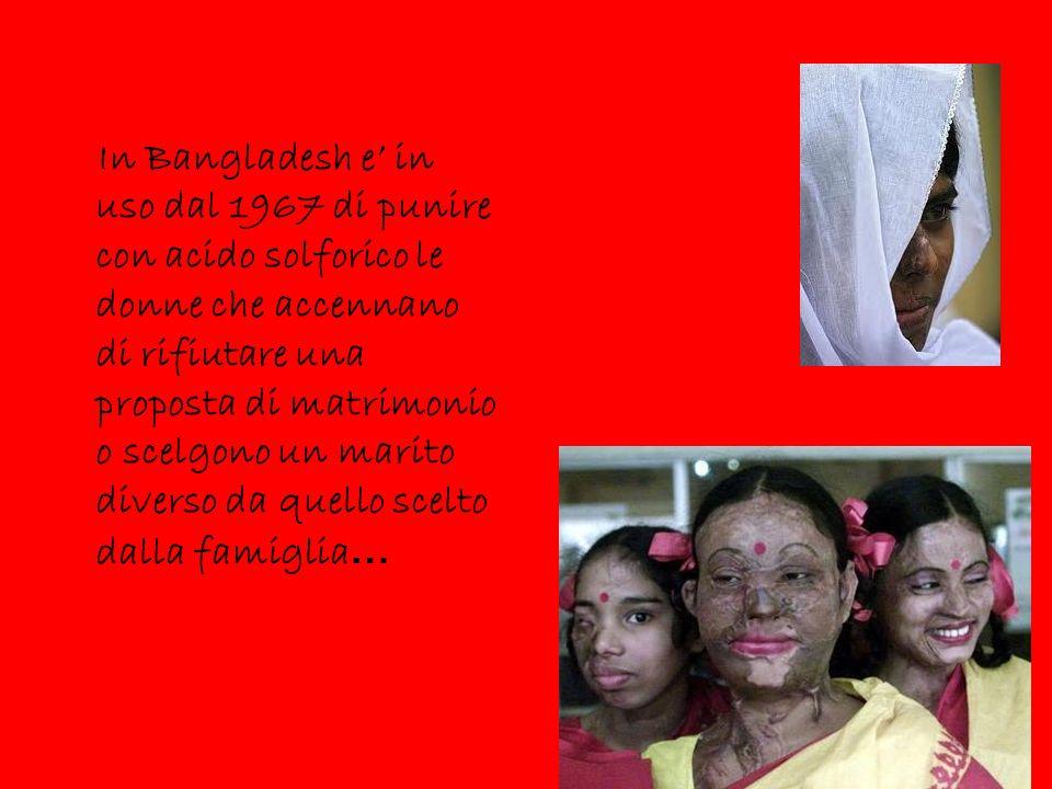 In Bangladesh e' in uso dal 1967 di punire con acido solforico le donne che accennano di rifiutare una proposta di matrimonio o scelgono un marito div