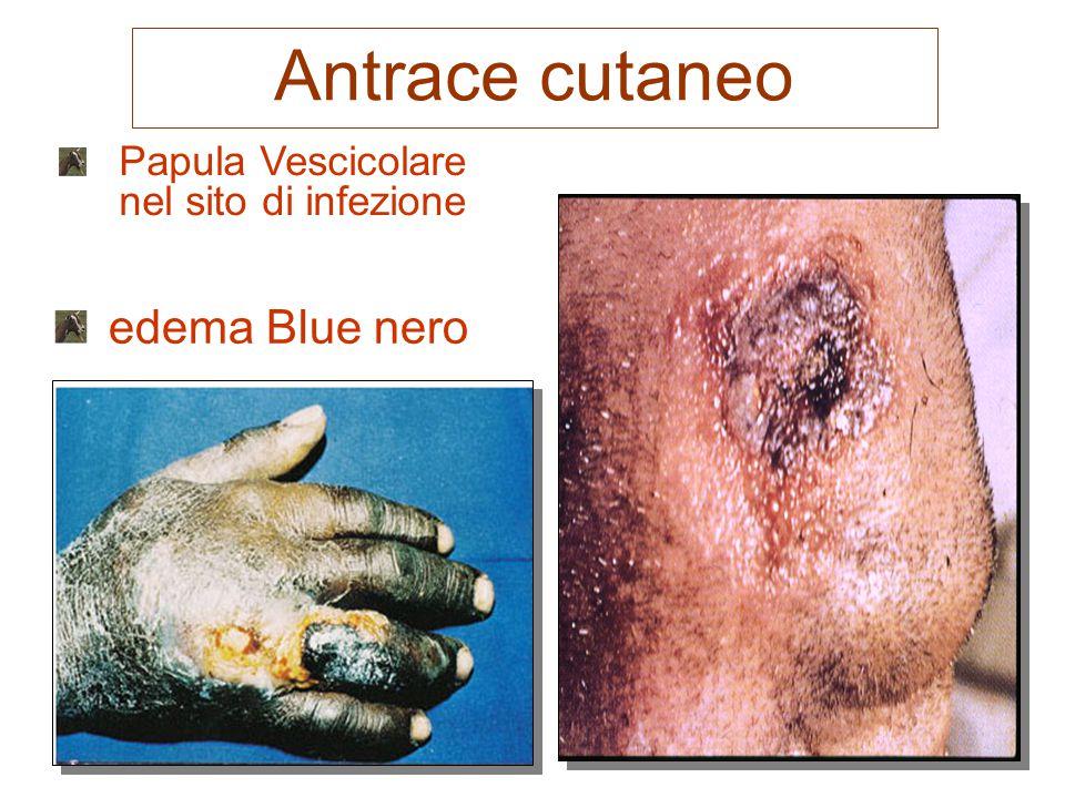 Papula Vescicolare nel sito di infezione edema Blue nero