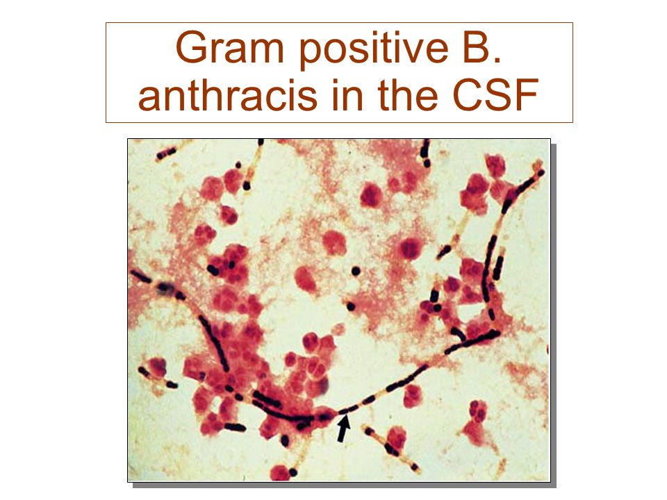 Gram positive B. anthracis in the CSF