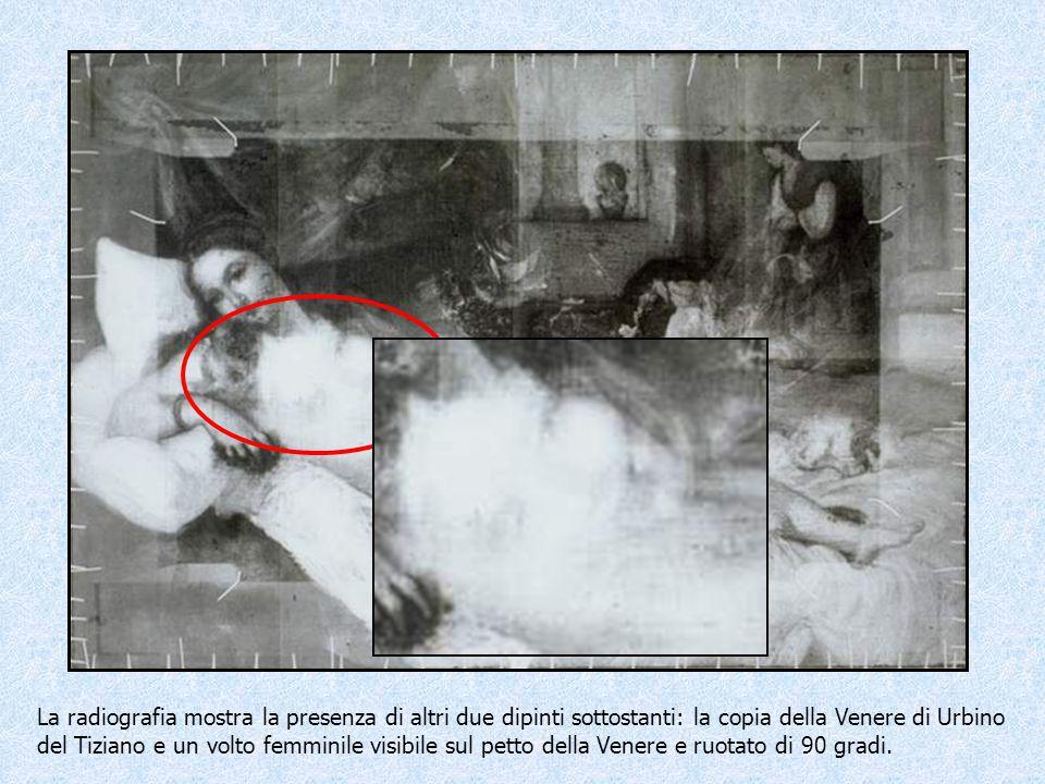 Radiografia La radiografia mostra la presenza di altri due dipinti sottostanti: la copia della Venere di Urbino del Tiziano e un volto femminile visib