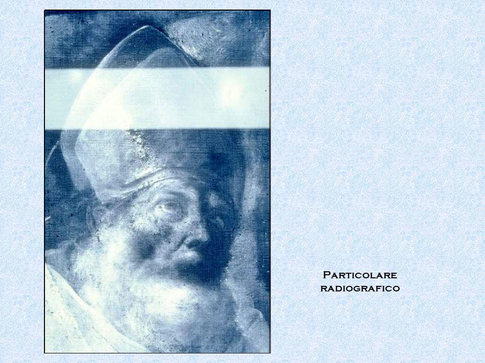 Particolare radiografico