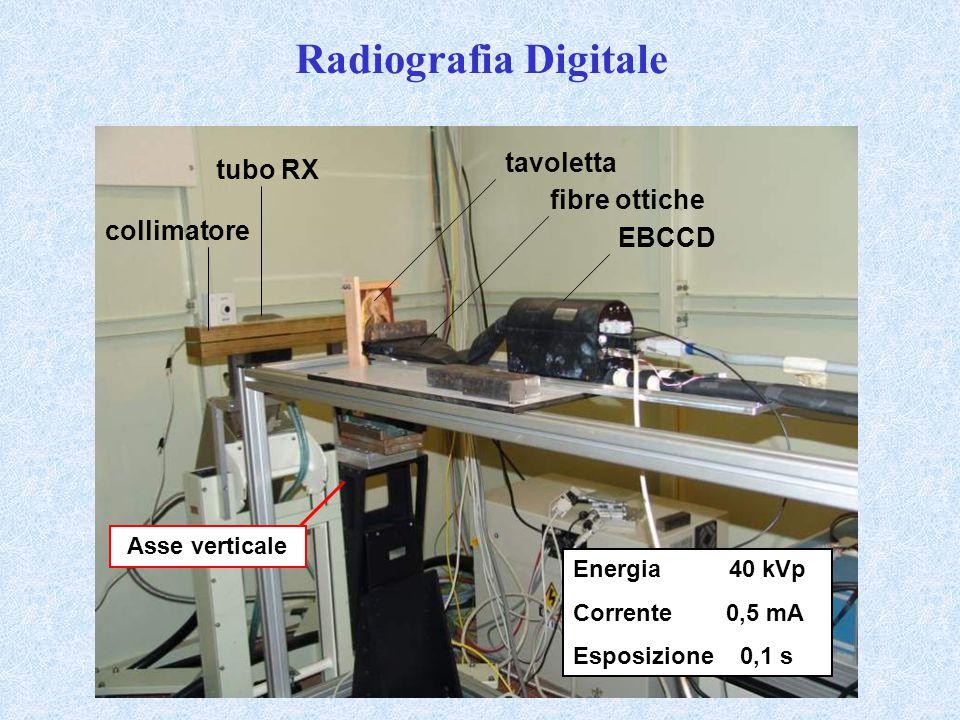 Radiografia Digitale tubo RX collimatore Asse verticale tavoletta fibre ottiche EBCCD Energia 40 kVp Corrente 0,5 mA Esposizione 0,1 s