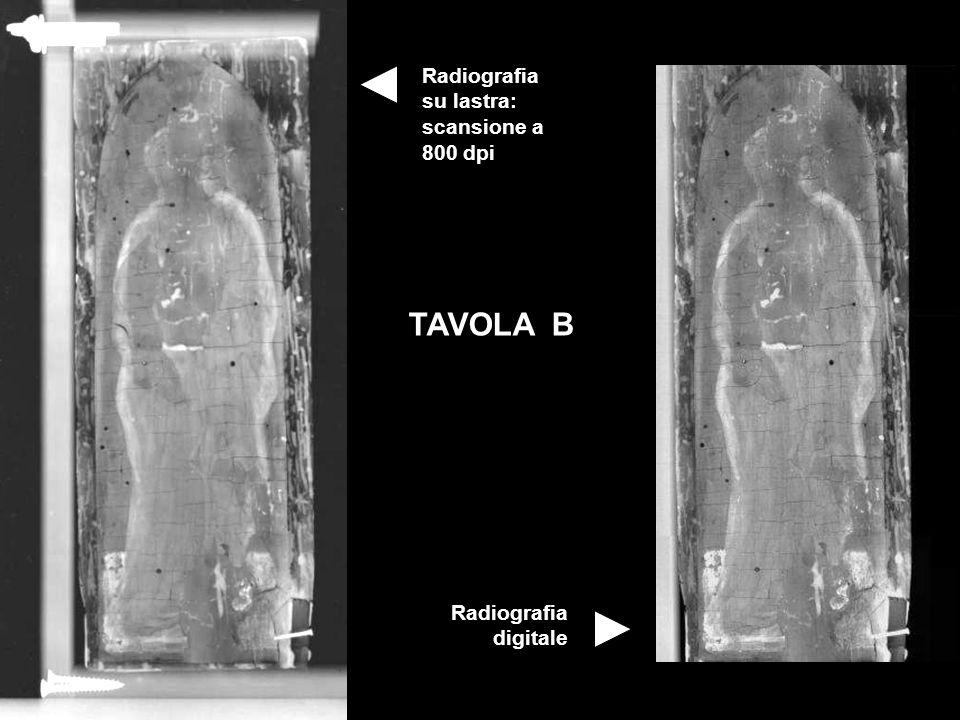 Radiografia su lastra: scansione a 800 dpi Radiografia digitale TAVOLA B