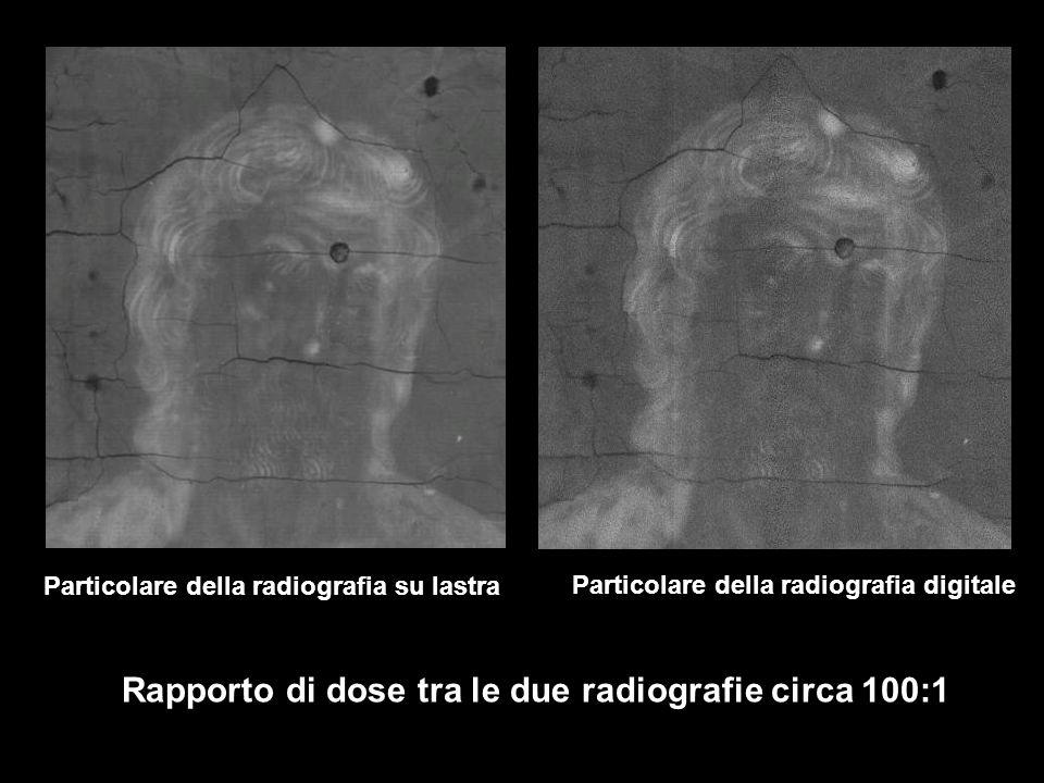 Particolare della radiografia su lastra Particolare della radiografia digitale Rapporto di dose tra le due radiografie circa 100:1