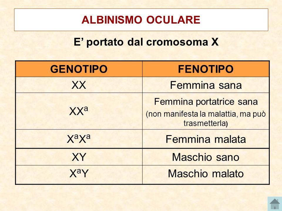 ALBINISMO OCULARE E' portato dal cromosoma X GENOTIPOFENOTIPO XXFemmina sana XX a Femmina portatrice sana (non manifesta la malattia, ma può trasmetterla ) XaXaXaXa Femmina malata XYMaschio sano XaYXaYMaschio malato