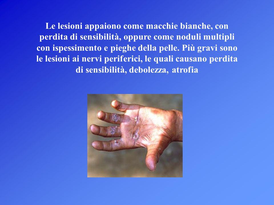 Le lesioni appaiono come macchie bianche, con perdita di sensibilità, oppure come noduli multipli con ispessimento e pieghe della pelle. Più gravi son