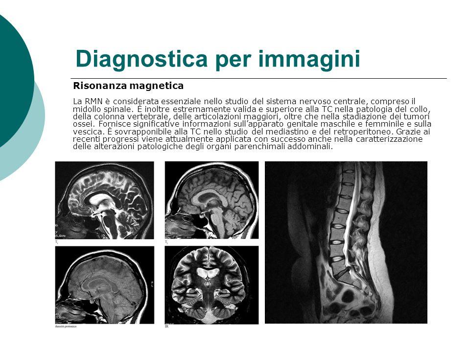 Diagnostica per immagini Risonanza magnetica La RMN è considerata essenziale nello studio del sistema nervoso centrale, compreso il midollo spinale.