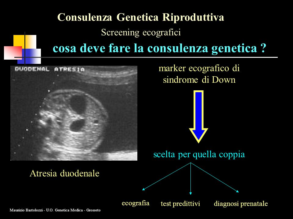 Consulenza Genetica Riproduttiva Screening ecografici cosa deve fare la consulenza genetica ? marker ecografico di sindrome di Down Atresia duodenale