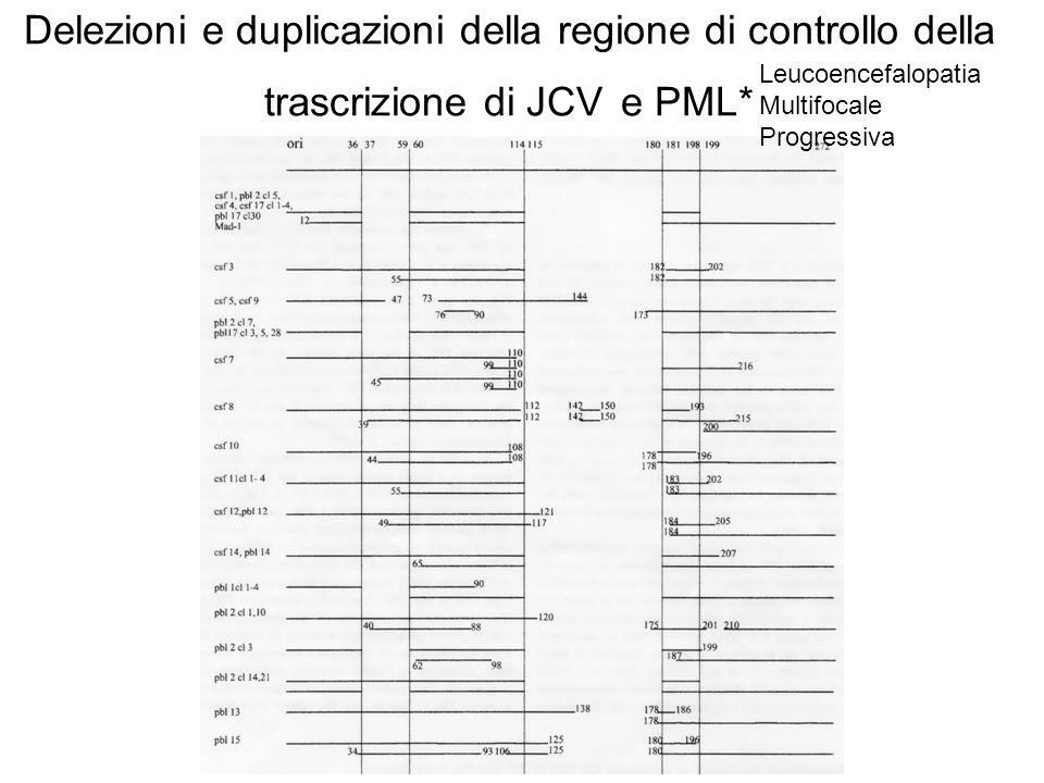Delezioni e duplicazioni della regione di controllo della trascrizione di JCV e PML* (Ciappi et al 1999) Leucoencefalopatia Multifocale Progressiva