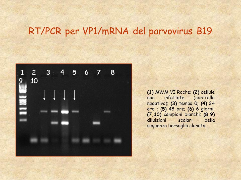 RT/PCR per VP1/mRNA del parvovirus B19 1 2 3 4 5 6 7 8 9 10 (1) MWM VI Roche; (2) cellule non infettate (controllo negativo); (3) tempo 0; (4) 24 ore ; (5) 48 ore; (6) 6 giorni; (7,10) campioni bianchi; (8,9) diluizioni scalari della sequenza bersaglio clonata.