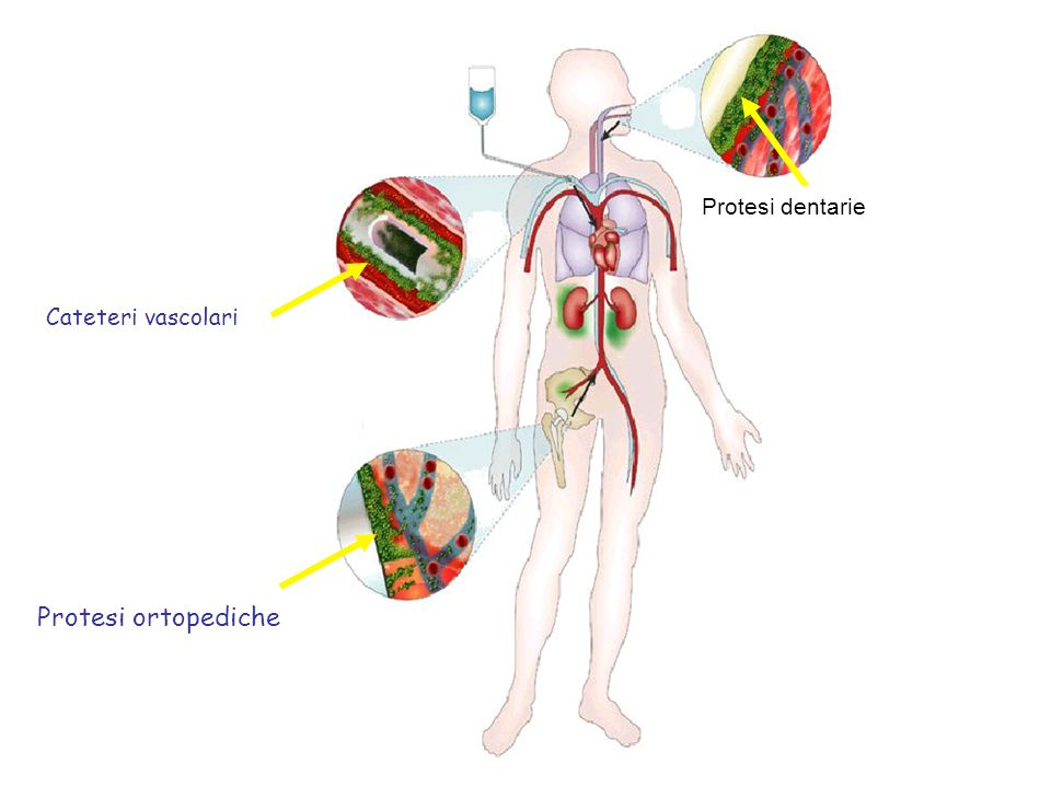 Cateteri vascolari Protesi ortopediche Cateteri vascolari Protesi dentarie