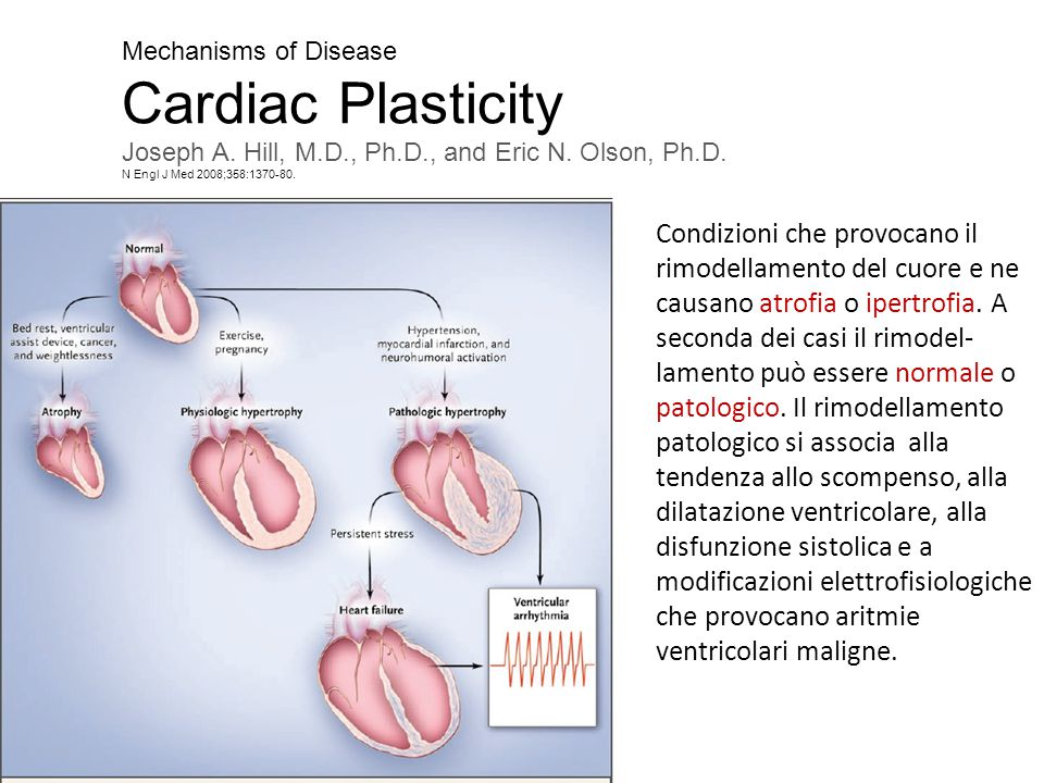Antiremodeling Effect of Long-Term Exercise Training in Patients With Stable Chronic Heart Failure Results of the Exercise in Left Ventricular Dysfunction and Chronic Heart Failure (ELVD-CHF) Trial Pantaleo Giannuzzi, MD; Pier Luigi Temporelli, MD; Ugo Corrà, MD; Luigi Tavazzi, MD; for the ELVD-CHF Study Group (Circulation.