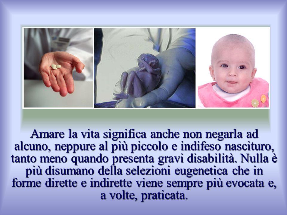 Amare la vita significa anche non negarla ad alcuno, neppure al più piccolo e indifeso nascituro, tanto meno quando presenta gravi disabilità. Nulla è
