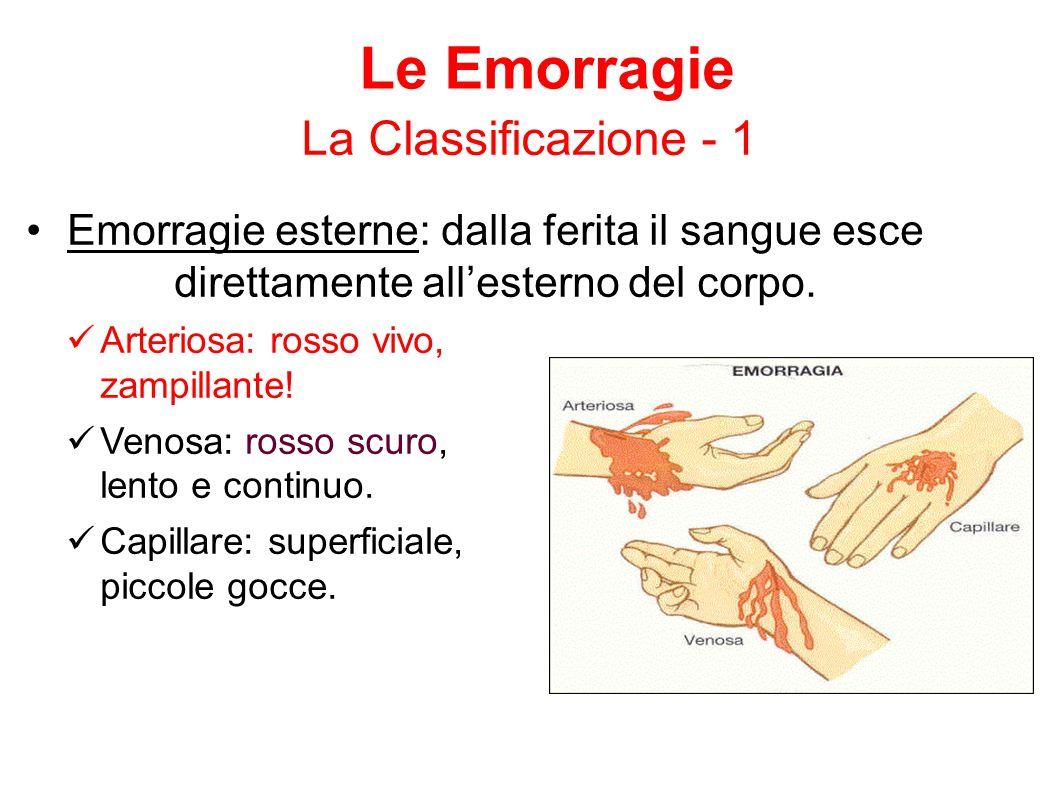 Emorragie esterne: dalla ferita il sangue esce direttamente all'esterno del corpo. Arteriosa: rosso vivo, zampillante! Venosa: rosso scuro, lento e co