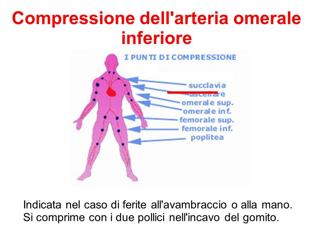 Indicata nel caso di ferite all'avambraccio o alla mano. Si comprime con i due pollici nell'incavo del gomito. Compressione dell'arteria omerale infer