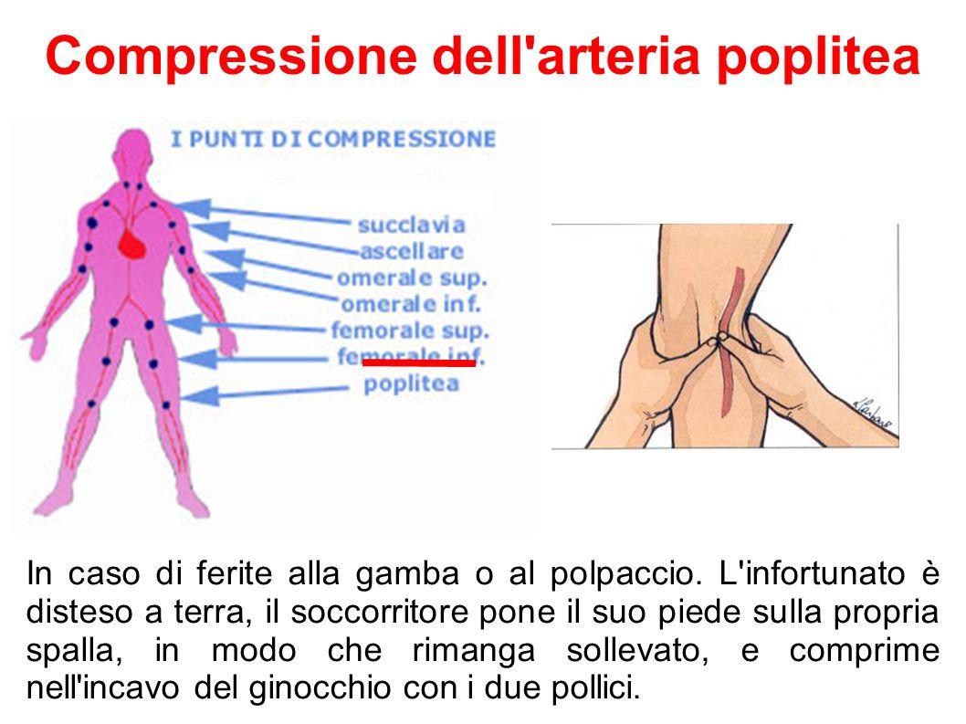 In caso di ferite alla gamba o al polpaccio. L'infortunato è disteso a terra, il soccorritore pone il suo piede sulla propria spalla, in modo che rima