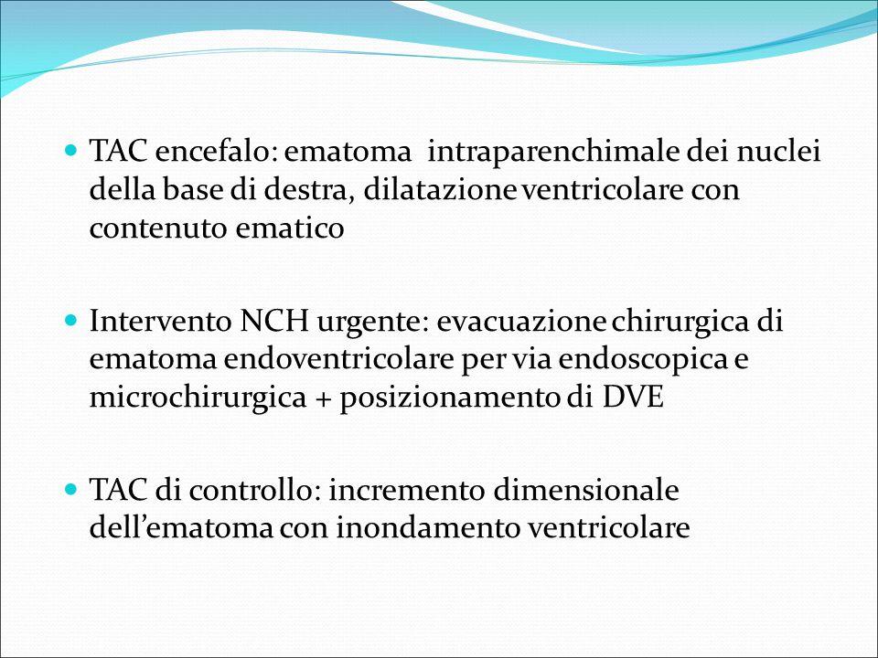 TAC encefalo: ematoma intraparenchimale dei nuclei della base di destra, dilatazione ventricolare con contenuto ematico Intervento NCH urgente: evacua
