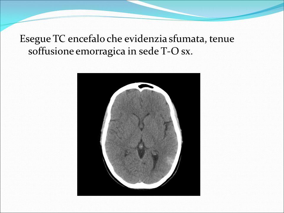 Si completa con RM encefalo che evidenzia angioma cavernoso, sottocorticale,temporale posteriore sx (1x 1.5 cm )