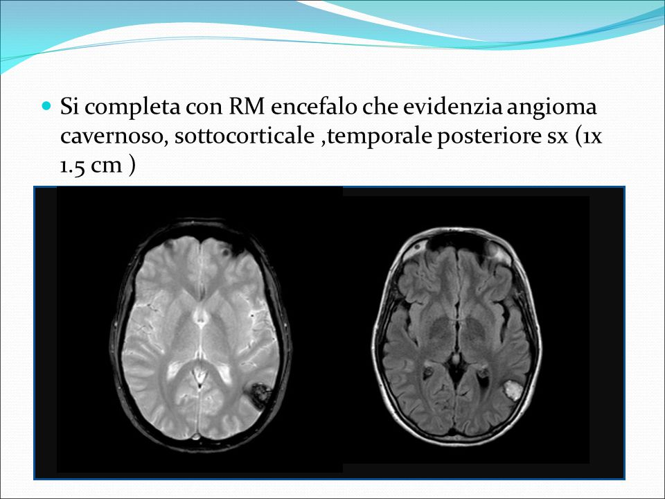 EEG : gruppi di onde lente, cuspidate, in sede temporale sx Dimessa con consiglio di terapia con Clobazam Genn 2014 taglio cesareo, neonata di kg 2950, sana EEG e RM encefalo: invariati EON: nella norma Marzo 2014 intervento neurochirurgico di asportazione della lesione angiomatosa Decorso post operatorio regolare Al follow up dopo 6 mesi obiettività neurologica normale, non crisi epilettiche