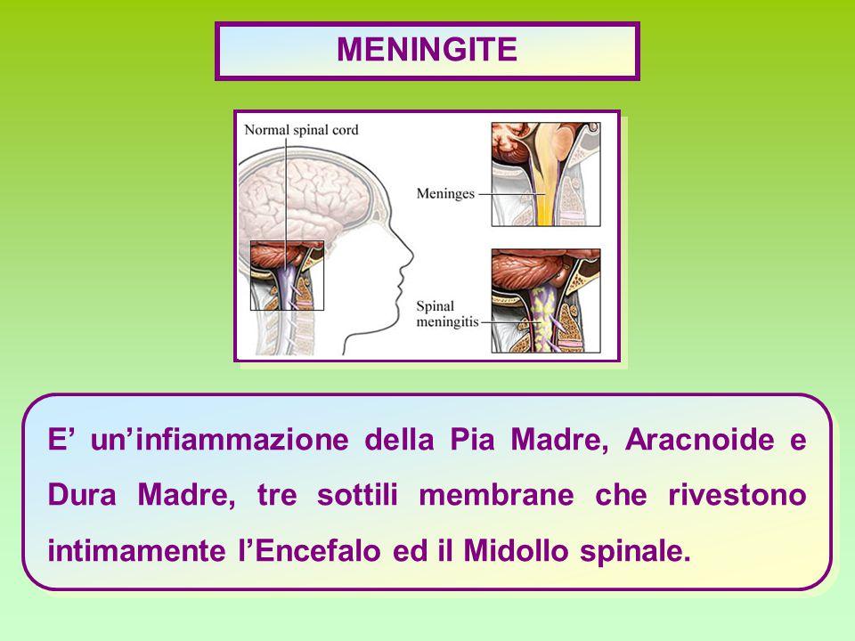 MENINGITE E' un'infiammazione della Pia Madre, Aracnoide e Dura Madre, tre sottili membrane che rivestono intimamente l'Encefalo ed il Midollo spinale.