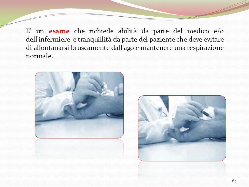 65 E' un esame che richiede abilità da parte del medico e/o dell'infermiere e tranquillità da parte del paziente che deve evitare di allontanarsi brus