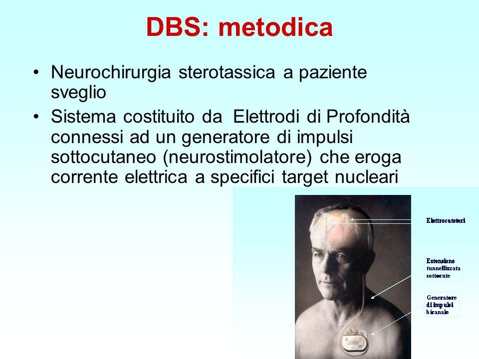 DBS: metodica Neurochirurgia sterotassica a paziente sveglio Sistema costituito da Elettrodi di Profondità connessi ad un generatore di impulsi sottocutaneo (neurostimolatore) che eroga corrente elettrica a specifici target nucleari
