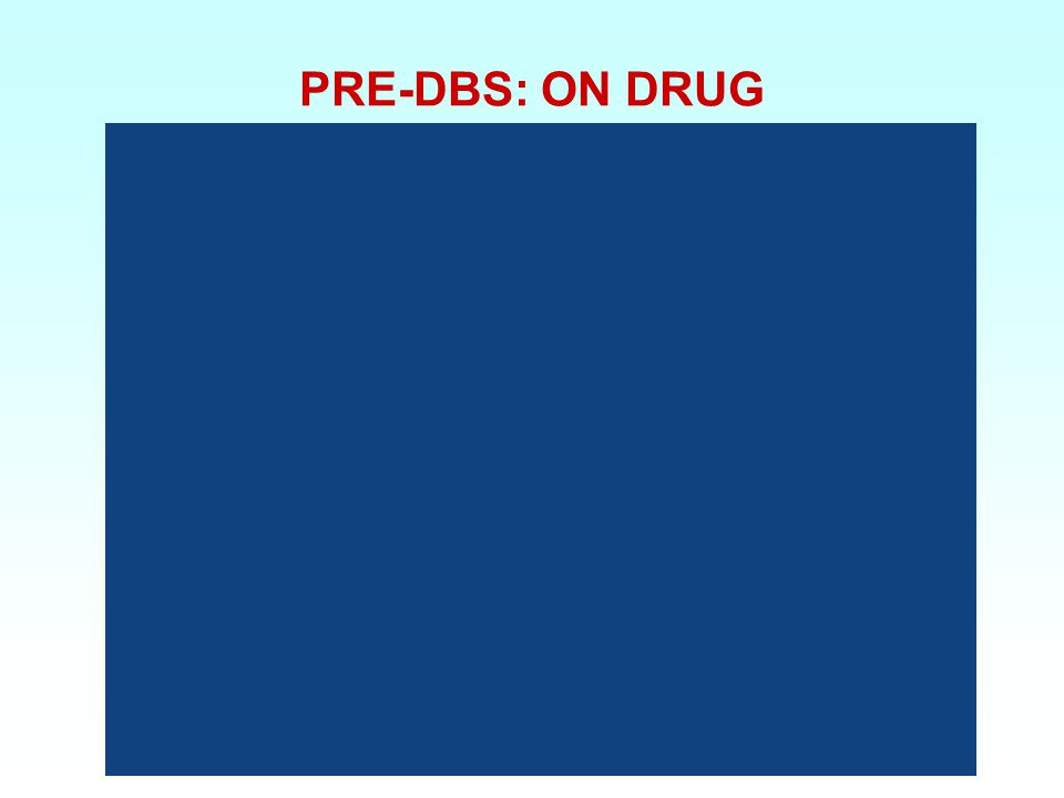 PRE-DBS: ON DRUG