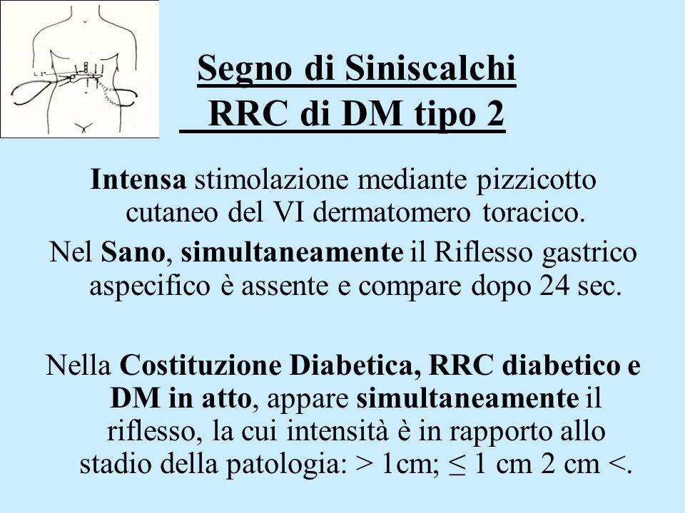 Segno di Siniscalchi RRC di DM tipo 2 Intensa stimolazione mediante pizzicotto cutaneo del VI dermatomero toracico. Nel Sano, simultaneamente il Rifle