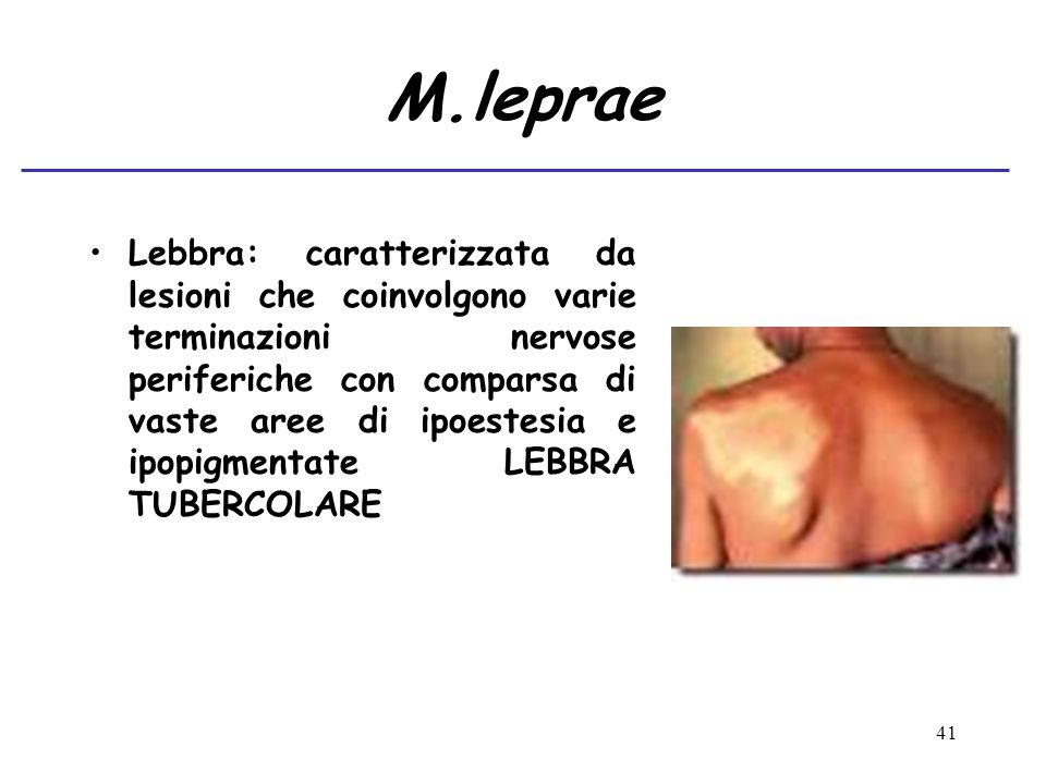 41 M.leprae Lebbra: caratterizzata da lesioni che coinvolgono varie terminazioni nervose periferiche con comparsa di vaste aree di ipoestesia e ipopig