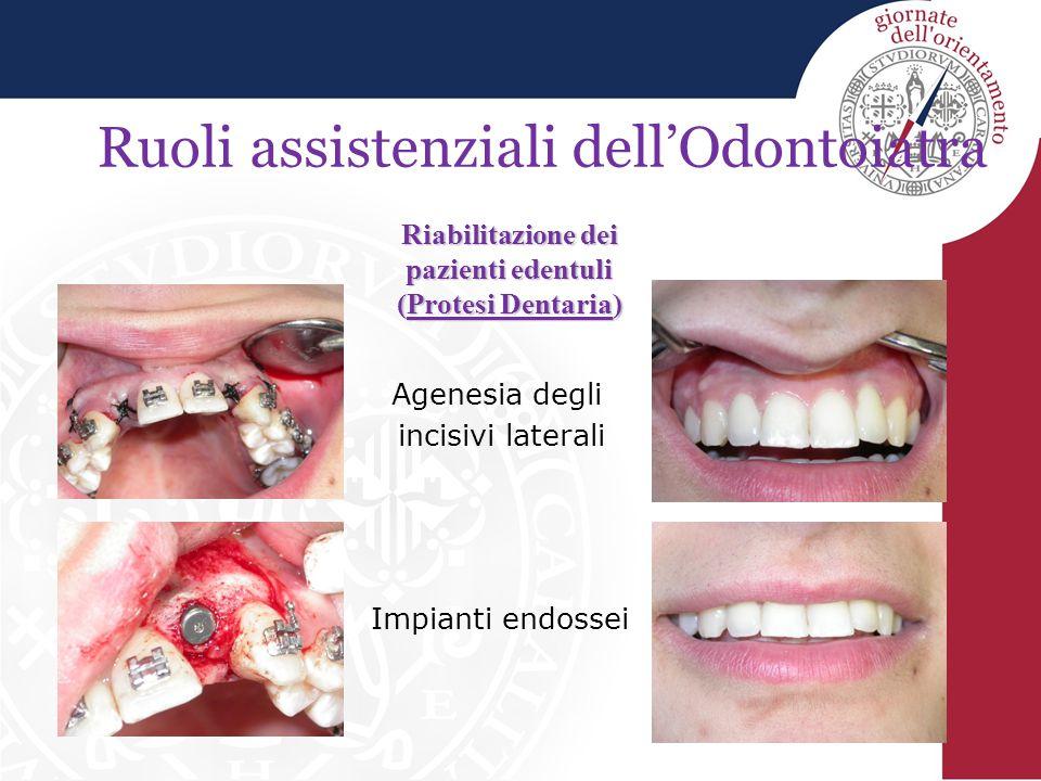Ruoli assistenziali dell'Odontoiatra Riabilitazione dei pazienti edentuli (Protesi Dentaria) Impianti endossei Agenesia degli incisivi laterali