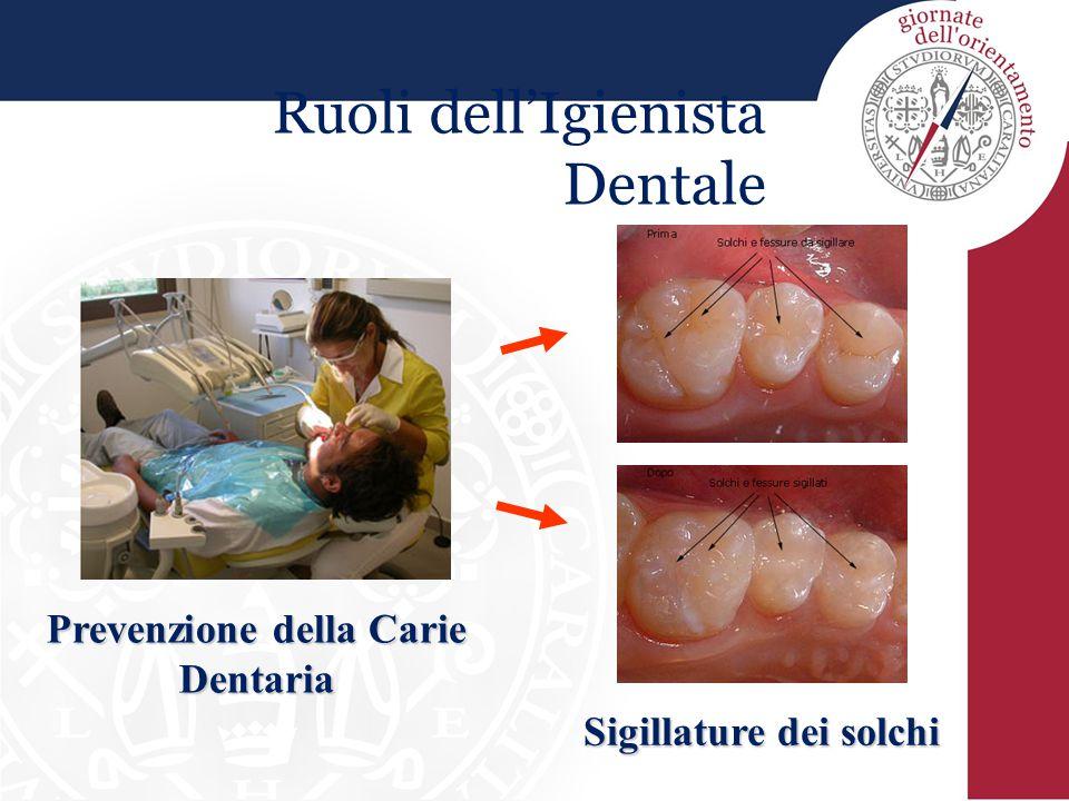 Ruoli dell'Igienista Dentale Prevenzione della Carie Dentaria Sigillature dei solchi