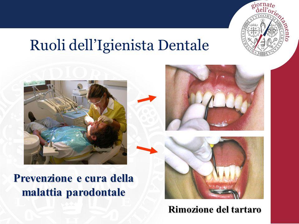 Ruoli dell'Igienista Dentale Prevenzione e cura della malattia parodontale Rimozione del tartaro