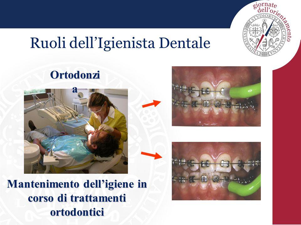 Ruoli dell'Igienista Dentale Ortodonzi a Mantenimento dell'igiene in corso di trattamenti ortodontici