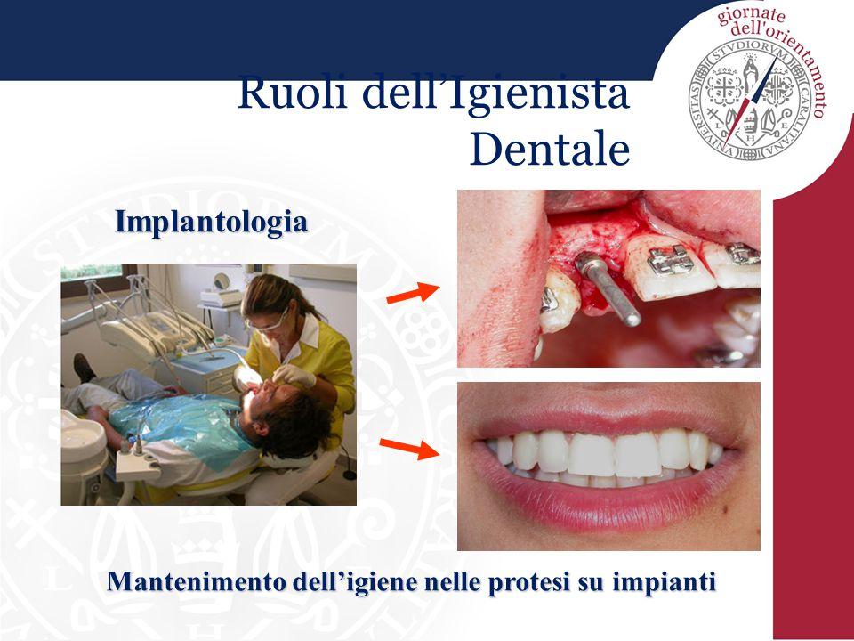Ruoli dell'Igienista Dentale Implantologia Mantenimento dell'igiene nelle protesi su impianti