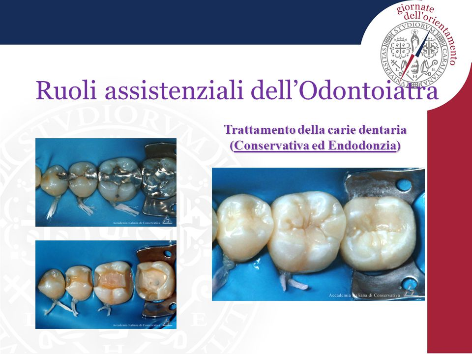 Ruoli assistenziali dell'Odontoiatra Prevenzione e cura dei denti dei bambini (Pedodonzia)