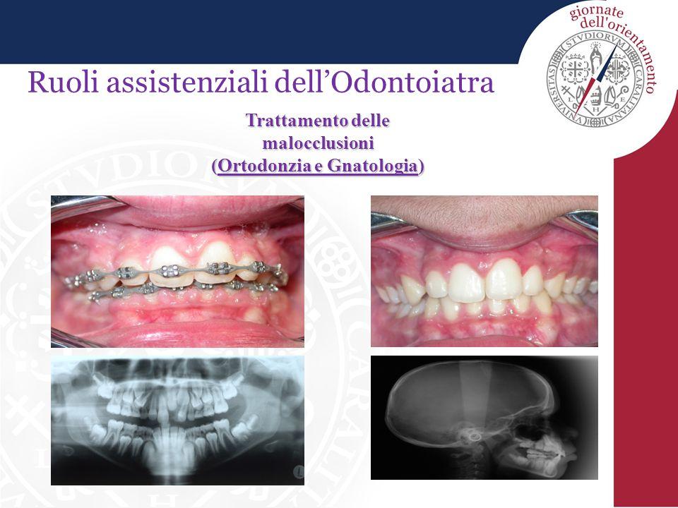 Ruoli assistenziali dell'Odontoiatra Trattamento delle malocclusioni (Ortodonzia e Gnatologia)