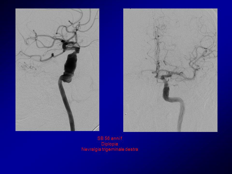 SB 56 anni f Diplopia Nevralgia trigeminale destra