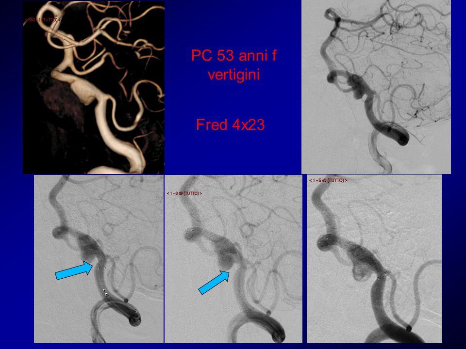 Sintomatologia regredita Controllo angiografico a 6 mesi Ricutizzazione della clinica Controllo angiografico a 9 mesi