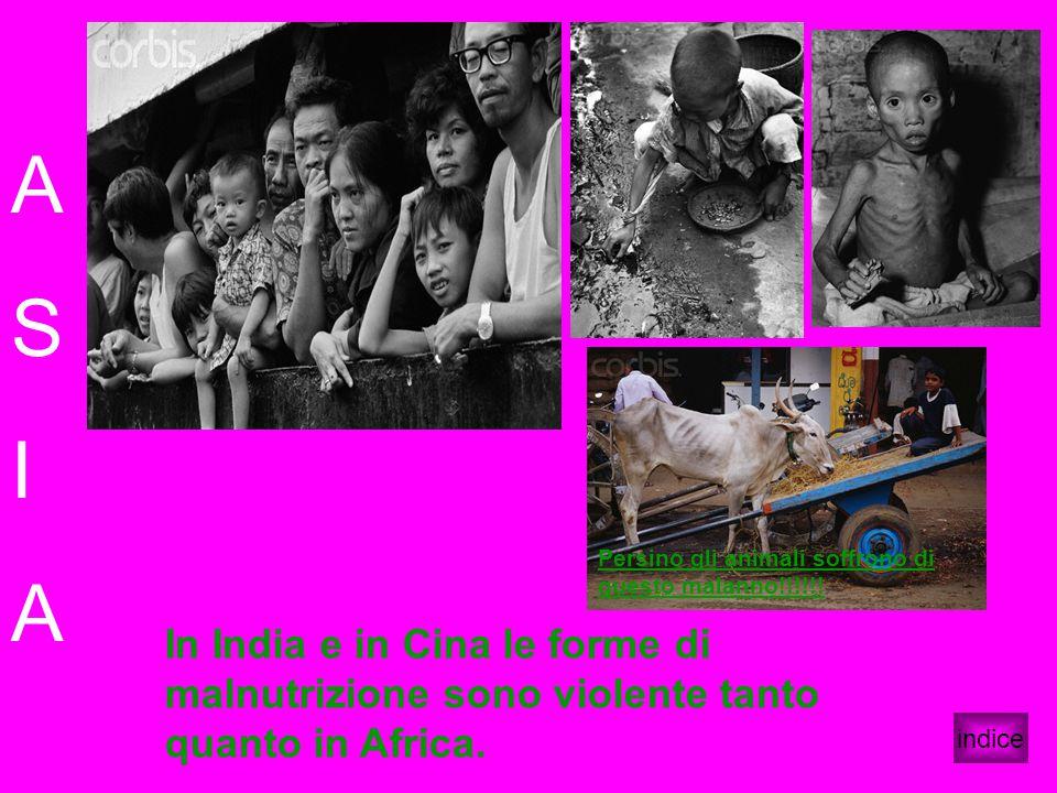 A S I A indice In India e in Cina le forme di malnutrizione sono violente tanto quanto in Africa. Persino gli animali soffrono di questo malanno!!!!!!