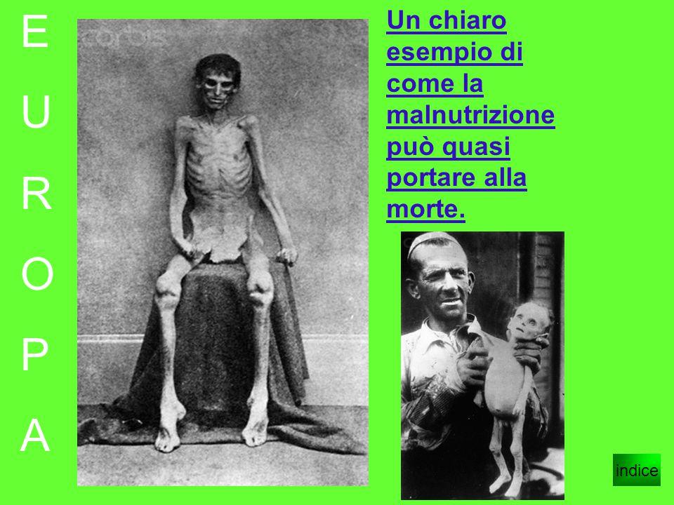 E U R O P A indice Un chiaro esempio di come la malnutrizione può quasi portare alla morte.