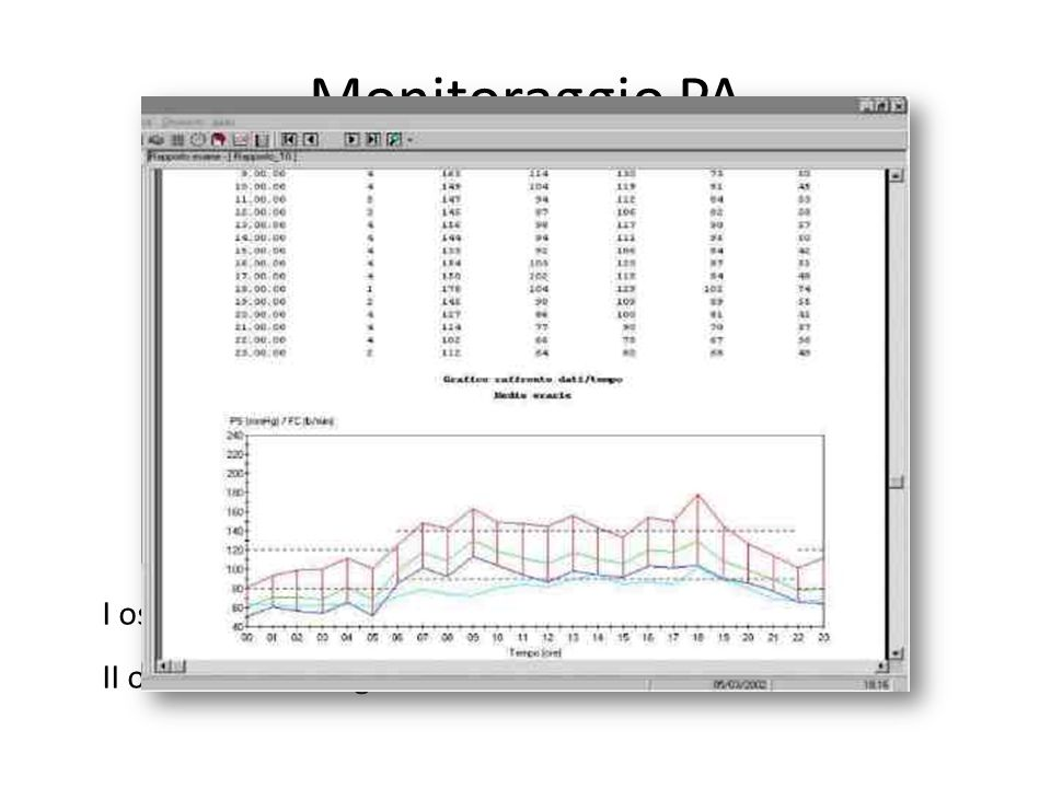 Risultati Pazienti: 84 Mediana età: 72 (62 – 79) Genere (M): Terapia antiaggregante/TAO: 42 (50%) NIH ingresso: 10 (5 – 16) NIH dimissione: 5 (2 – 10) SBP 24 h: 152 mmHg (143 – 164) DBP 24 h: 84 mmHg (74 – 95) SBP night: 148 mmHg (138 – 160) DBP night: 85 mmHg (75 – 91) Dipper: 8 (4.5%) Decessi intraospedalieri: 8 (9.5%)