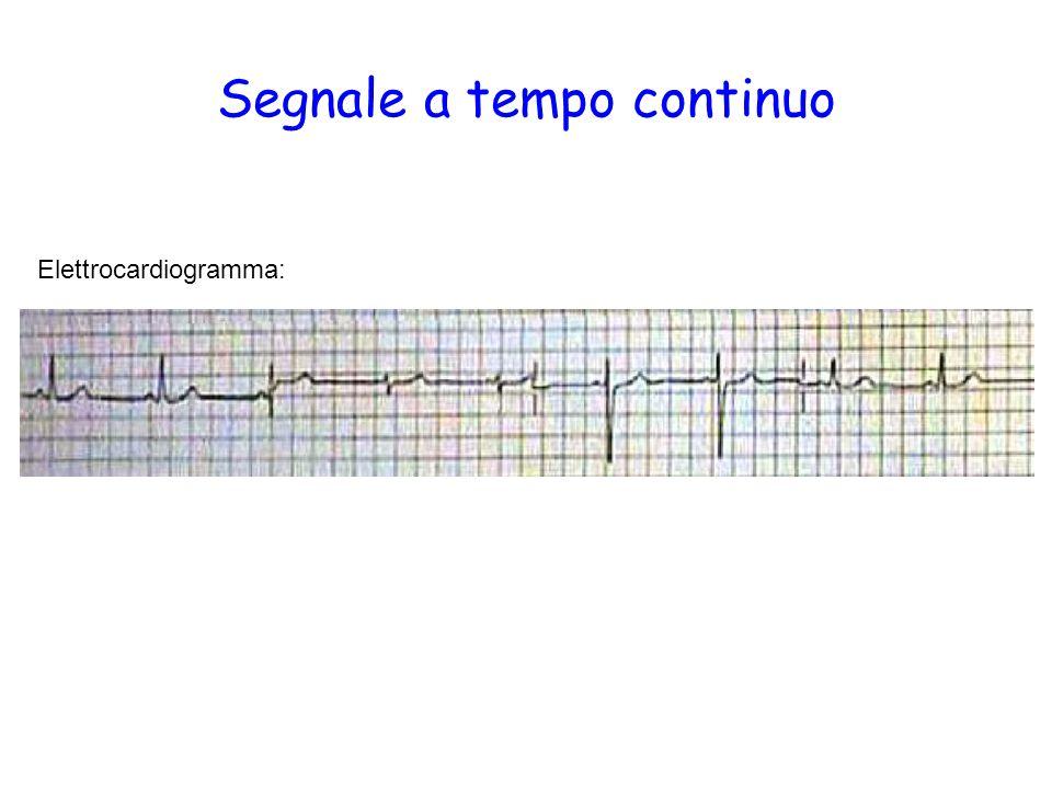 Segnale a tempo continuo Elettrocardiogramma: