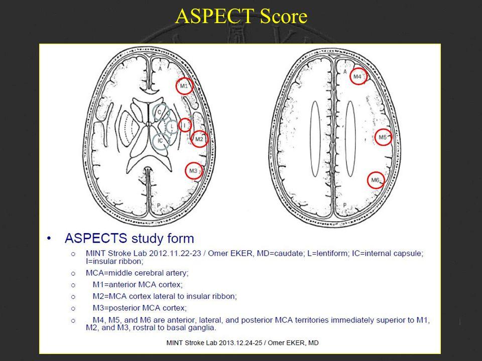 ASPECT Score