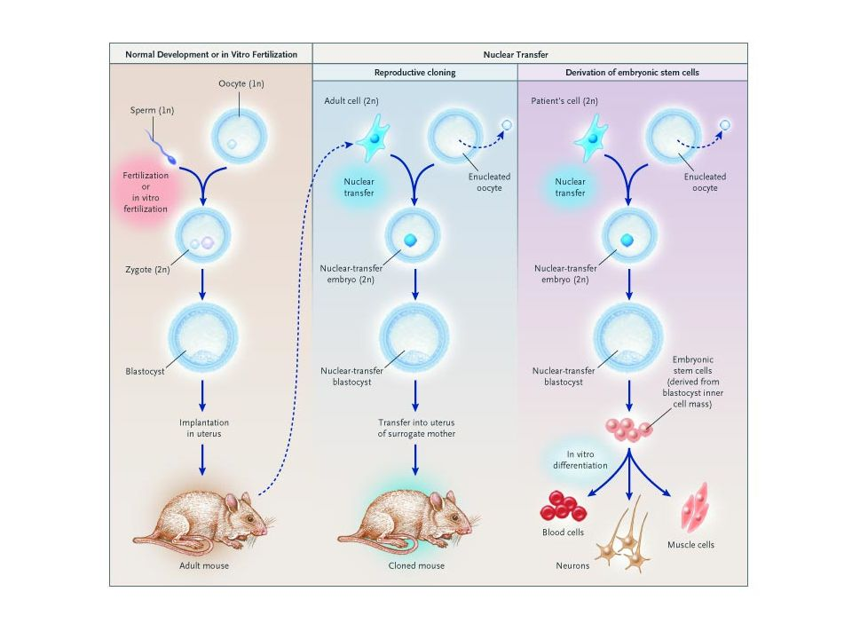 SOMATIC CELL NUCLEAR TRANSFER The nucleus of an unfertilized egg is replaced with the nucleus from a somatic cell, such as a skin cell, from the patient who will ultimately be transplanted with the appropriate differential cells.