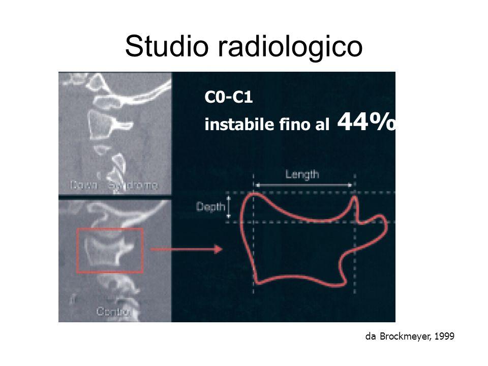 Studio radiologico C0-C1 instabile fino al 44% da Brockmeyer, 1999