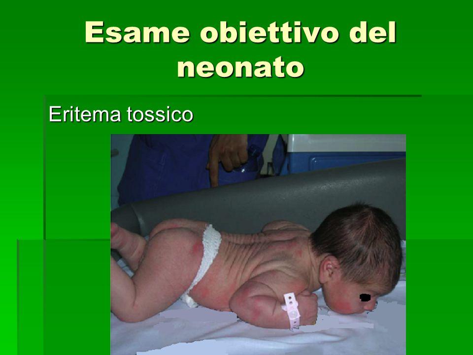Esame obiettivo del neonato Eritema tossico